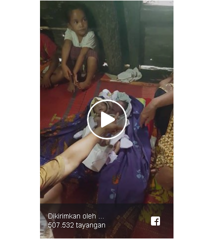 Warganet Dibuat Geger Dengan Lahirnya Bayi Berkepala Dua Kisahnya Viral