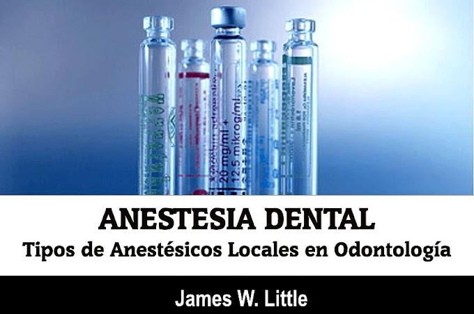 ANESTESIA DENTAL: Tipos de Anestésicos Locales en Odontología - James W. Little