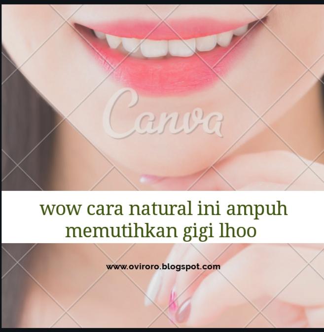 Cara Natural Ini Ampuh Memutihkan Gigi Lhoo