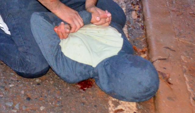 O assaltante sangrava muito pelo nariz Foto Joaquim Dantas/Blog do Arretadinho