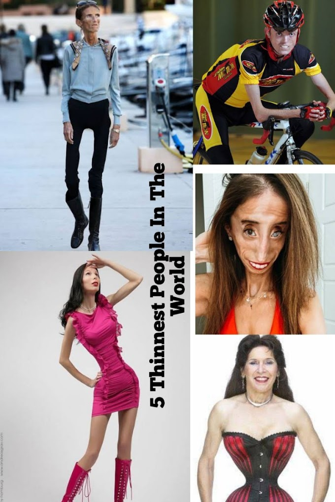 Top 5 Thinnest People In The World: Men & Women (Pictures Included)