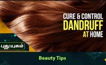 Home Remedies To Cure & Control Dandruff 19-10-2017 Puthuyugam Tv