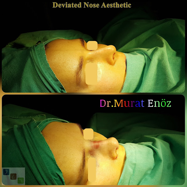 Deviated Nose Aesthetic Turkey
