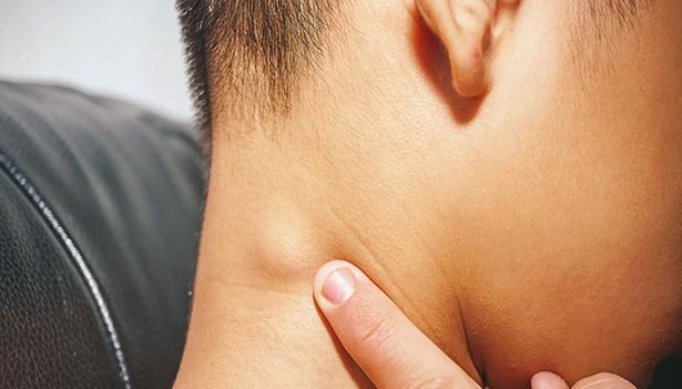 Resep Manjur Obat Kelenjar Getah Bening di Leher