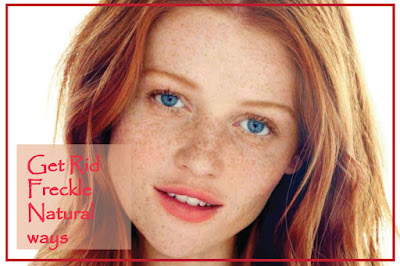 What Are Freckles? Natural Ways To Get Rid Freckle