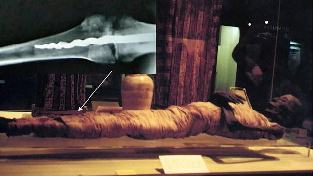 El tornillo encontrado en la rótula de una momia egipcia de 2.600 años