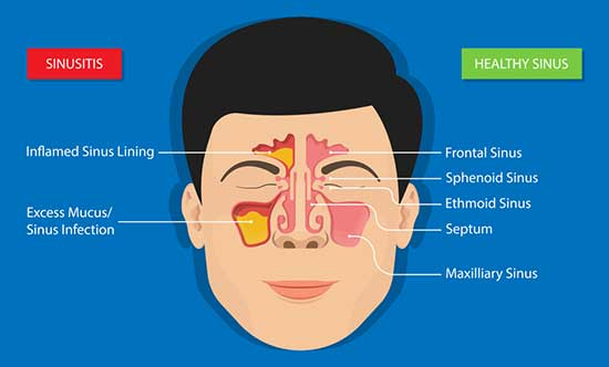 Chronic Sinusitis: Symptoms, Causes, Treatments and Home Remedies