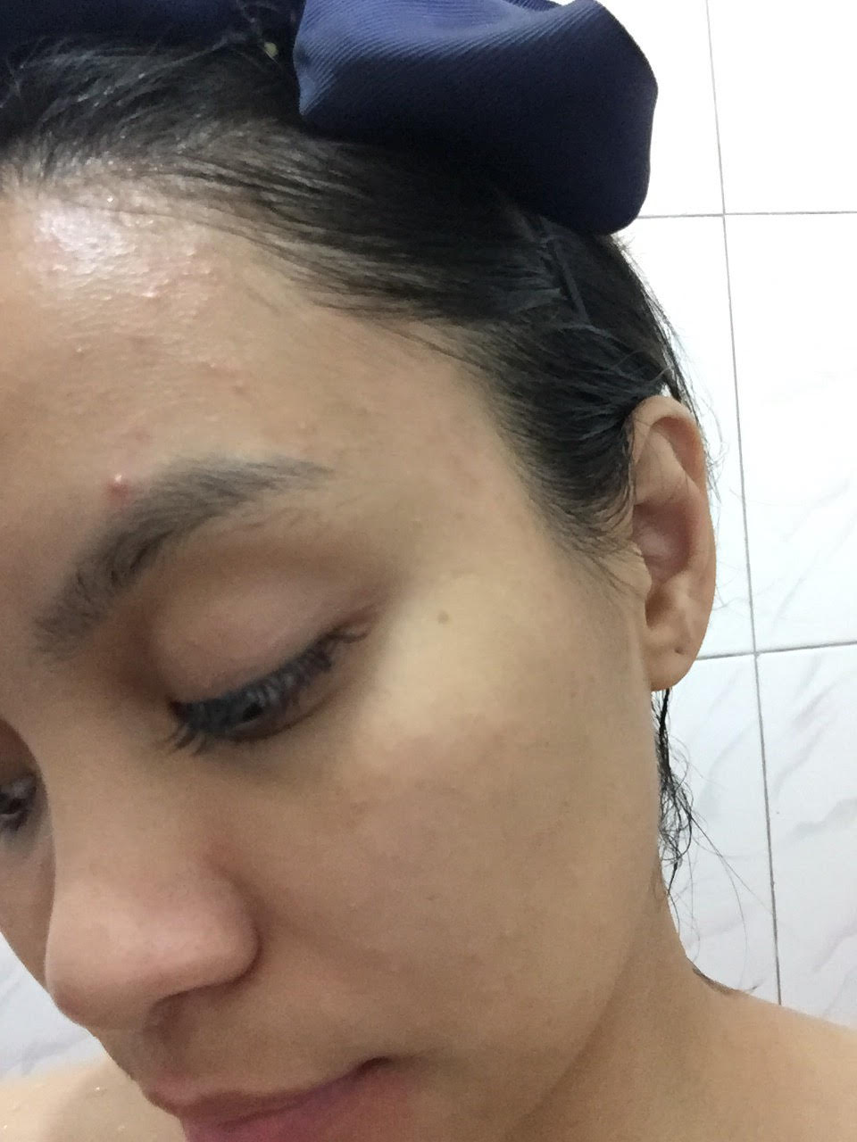 girl with bad acne breakout