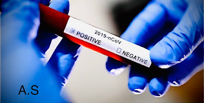 """أزمة فيروس كورونا .. هل أنت من المحظوظين الذين يحملون فصيلة الدم """"O"""" ؟"""