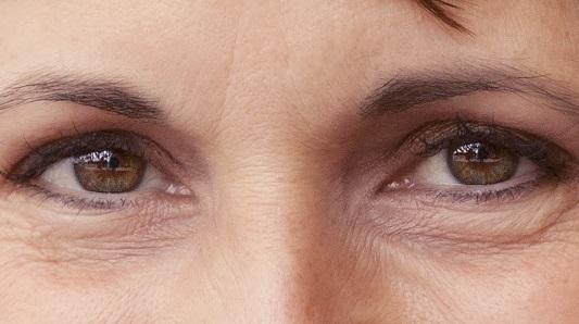 Cara Menghilangkan Kerutan Dibawah Mata Secara Cepat