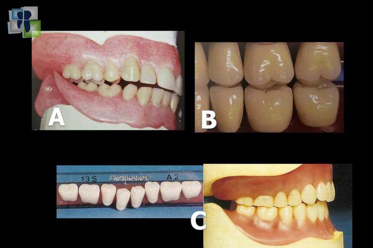 طب الأسنان المسند بالدليل - نماذج الأجهزة المتحركة الكاملة