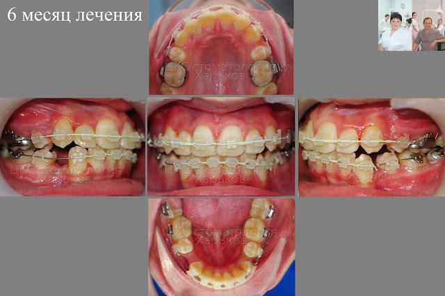 Результат лечения брекетами через 6 месяцев