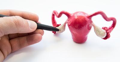 التغذية العلاجية لمريضات تكيس المبايض  Therapeutic feeding for PCOS patients Polycystic ovaries