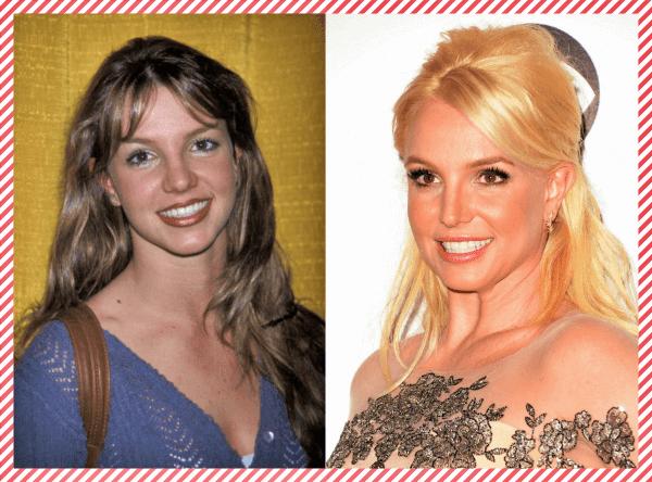 Britney Spears Estetik Öncesi ve Sonrası