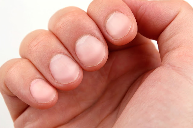 Nail color reveals: Kidney disease
