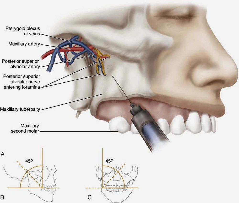 Dental Anesthesia