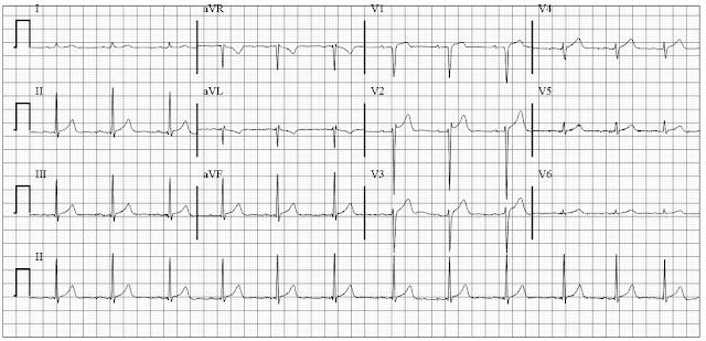 Left pneumothorax on ECG