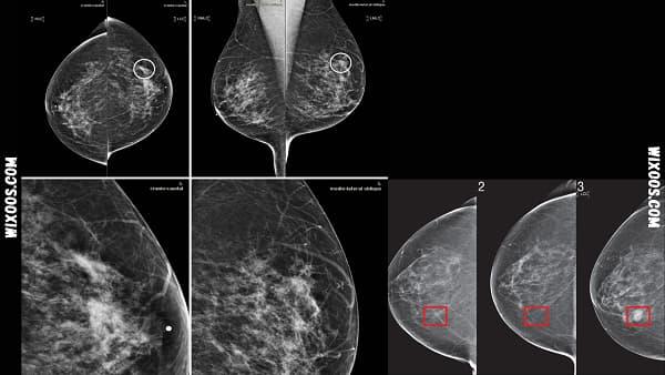 AI algorithm: better cancer detection