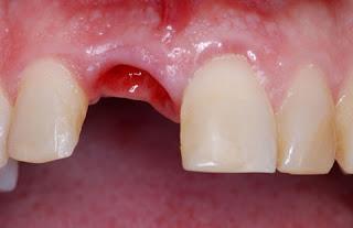 Récupération des dents