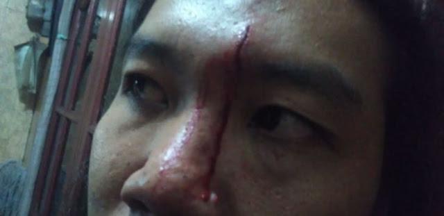 Wartawan Kumparan Jadi Korban Kericuhan Polsek Ciracas