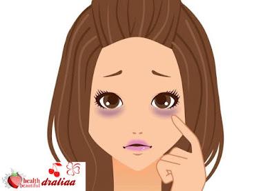 اسهل خمس طرق لعلاج الهالات السوداء  تحت العين طبيعيا واسباب السواد تحت العين