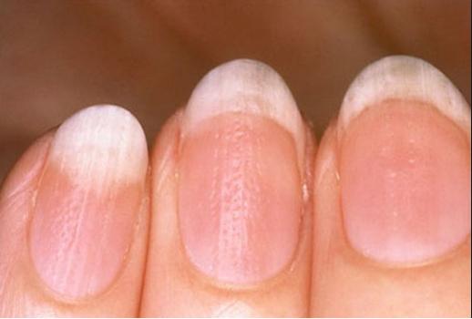 móng tay có vết lõm hoặc rỗ