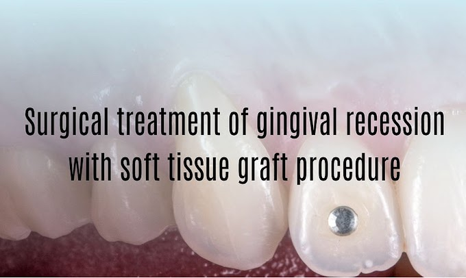 PDF: Surgical treatment of gingival recession with soft tissue graft procedure