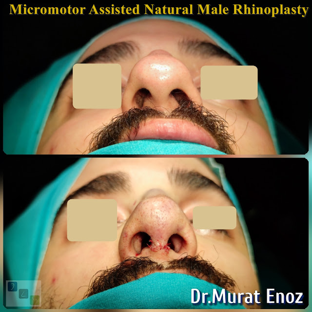 Micro-motor assisted male rhinoplasty - Nose job for men - Crooked nose aesthetic in Istanbul