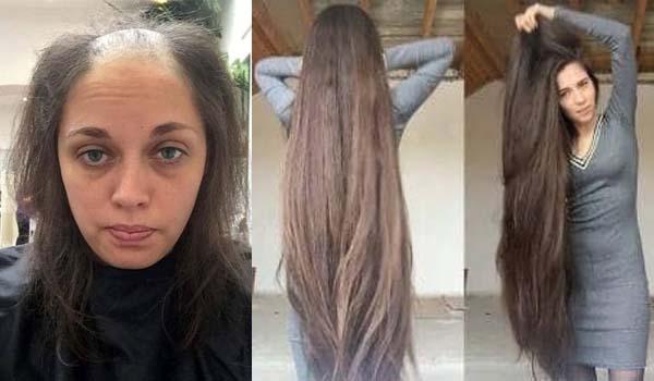 Suburkan Rambut Cukup Dengan 2 Bahan Dapur, Bisa gitu?