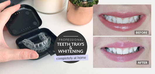 Brighter Teeth? Yes, Please! Review & GIVEAWAY