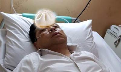 6 Meme Satire 'Setya Novanto Kecelakaan' yang Beredar di Media Sosial