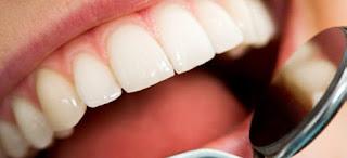 ¿Qué es una endodoncia y cuándo es necesaria?