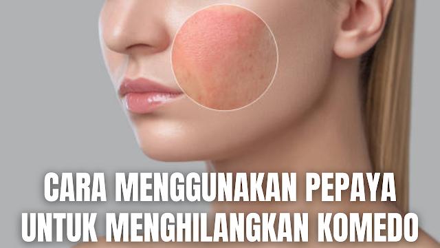 "Cara Menggunakan Pepaya Untuk Menghilangkan Komedo Pepaya memiliki kandungan enzim papain yang dapat membantu meregenerasi kulit. Serta buah pepaya memiliki kandungan Vitamin E, A dan C nya berfungsi sebagai anti-oksidan yang bisa membantu untuk menutrisi dan melembapkan kulit.  Menggunakan pepaya untuk merawat kulit wajah, akan membantu menghilangkan kulit mati, membersihkan kotoran pada wajah, dan membersihkan komedo. Pepaya bisa dimanfaatkan menjadi sunscreen atau tabir surya alami bagi kulit wajah.  Cara Memakai Pepaya Untuk Komedo Cara-cara di dalam menggunakan pepaya untuk menghilangkan komedo adalah :  Potong pepaya kecil-kecil Haluskan pepaya sampai lembut Gunakan sebagai masker, dan biarkan selama 30 menit Setelah 30 menit silahkan bersihkan wajah dengan air bersih Penggunaan buah ini akan membantu mengecilkan pori-pori wajah    Nah itu dia bahasan dari bagaimana cara memakai pepaya untuk menghilangkan komedo. Melalui bahasan di atas bisa diketahui mengenai tahapan-tahapan di dalam menggunakan pepaya untuk menghilangkan bekas komedo. Mungkin hanya itu yang bisa disampaikan di dalam artikel ini, mohon maaf bila terjadi kesalahan di dalam penulisan, dan terimakasih telah membaca artikel ini.""God Bless and Protect Us"""