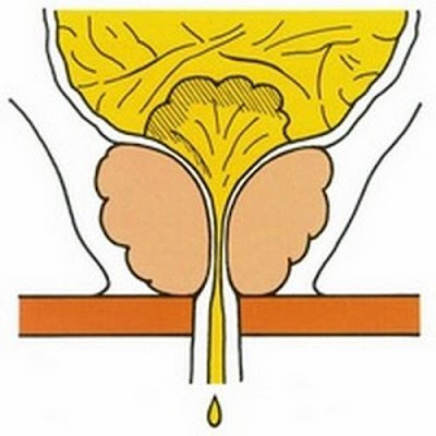 Incontinence urinaire : vessie neurogène, causes traitement