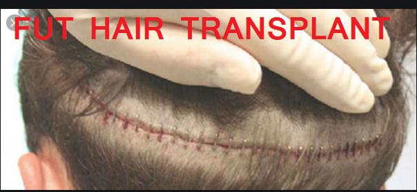 fut hair transplant kya hai (prochaidurai) aur isme kitna kharch aata hai? ditel mein