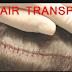 FUT Hair Transplant क्या है (Procedure) और इसमें कितना खर्च आता है? डिटेल में