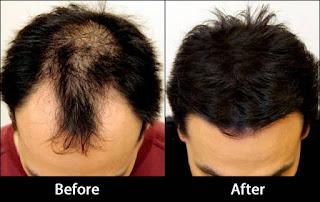 علاج تساقط الشعر لمرضى السكر