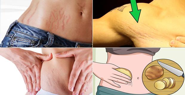 remove-stretch-marks-naturally
