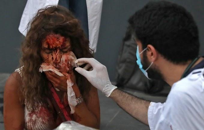 Explosão em Beirute deixa pelo menos 73 mortos e 2,7 mil feridos