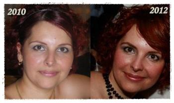 fogyás arcváltozások