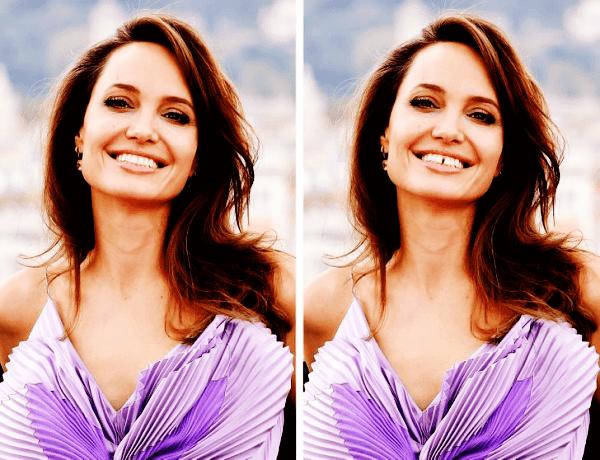 Angelina Jolie Dişleri