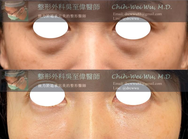 2020年3月最新眼袋案例:內開無痕眼袋+自體脂肪填補淚溝,非常有效的改善眼袋,淚溝與黑眼圈。(眼袋手術權威吳至偉醫師)