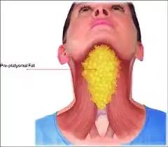 reduce neck fat by bodytrick