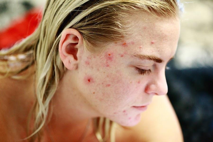 Plantas medicinales contra el acné