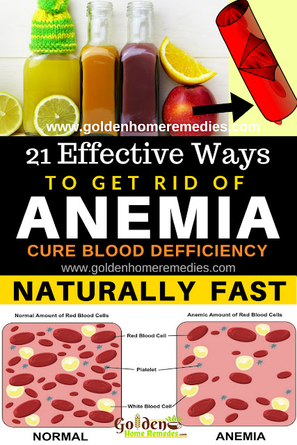 how to get rid of anemia, home remedies for anemia, anemia treatment, how to cure anemia, anemia relief fast, treat blood deficiency, make new blood, iron deficiency, how to treat anemia, anemia home remedies, anemia remedies, remedies for anemia, cure anemia, treatment for anemia, best anemia treatment, how to get relief from anemia, relief from anemia, how to get rid of anemia fast,