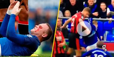 VIDEO: Rooney recibe un brutal golpe ¡Podría perder el ojo!