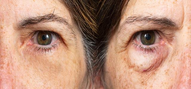 Tips for Using Skin Care for Eyes