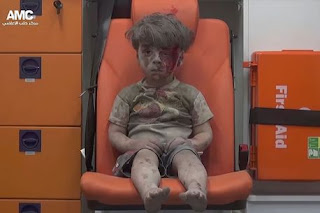 Image of 5 year old boy injured and bloodied in airstrikes