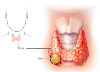 Cancer, types of cancer, thyroid cancer