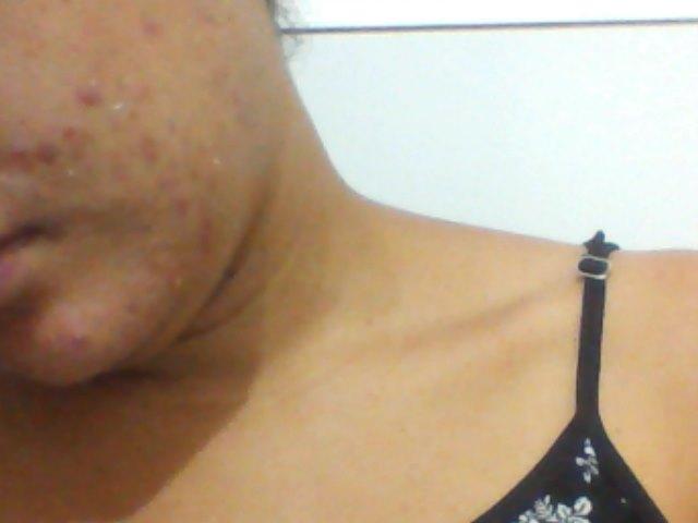 Achegue-se! Como se livrar das acnes com produtos acessíveis.